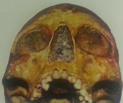 Een van de gevonden schedels. (Bron: Rapport archeologisch onderzoek Oude Markt 2003, gepubliceerd in 2011)