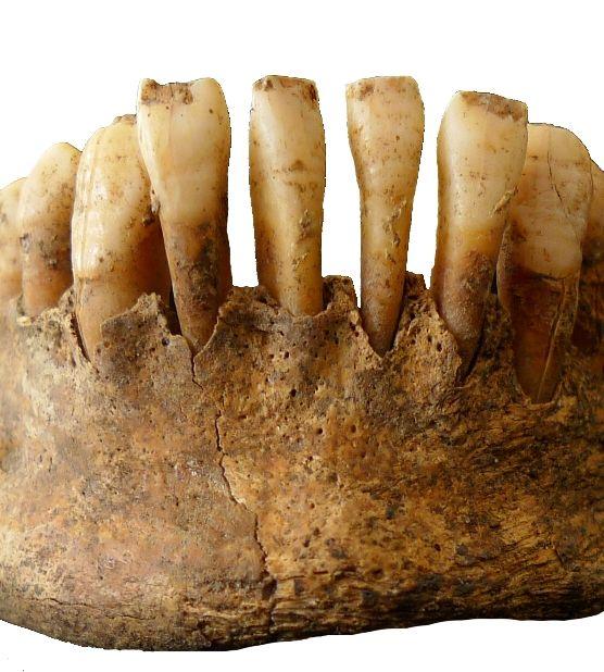 Dunne horizontale lijnen in het glazuur van de tanden (glazuurhypoplasie) wijzen op ziekte of ondervoeding tijdens de aanleg van de tanden. (Rachel Schats, Laboratorium voor Menselijke Osteoarcheologie, Universiteit Leiden)