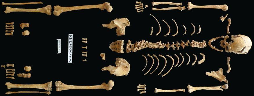 Overzicht van het skelet van een man, tussen de 26 en 35 jaar oud. Elk skelet van Klaaskinderkerke is op deze manier in het laboratorium gefotografeerd.
